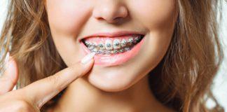 kobieta-z-aparatem-ortodontycznym
